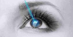 Laser Eye Surgery/Lasik